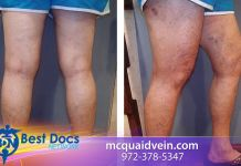 Vein Patient Testimonial | Joyce | Dr. Mark McQuaid