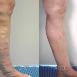 Treatment of Varicose Veins